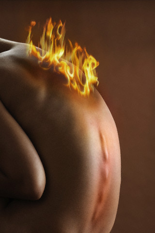 Woman's back on fire